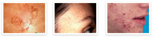 LA Laser Center for Better Skin Care - Blog